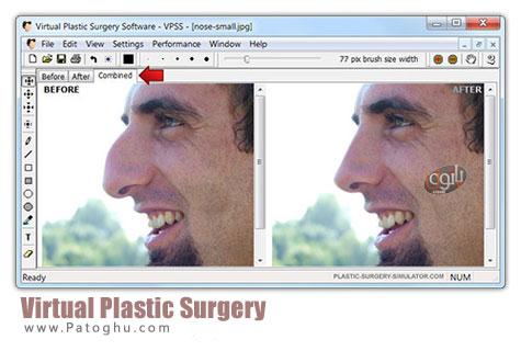 دانلود نرم افزار فوق العاده جراحی زیبایی - Virtual Plastic Surgery 1.2