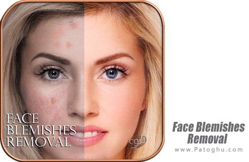 دانلود Face Blemishes Removal